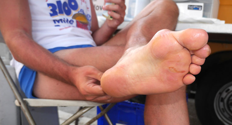 pranjal-foot