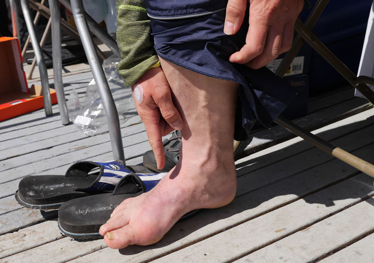 Smarana-foot