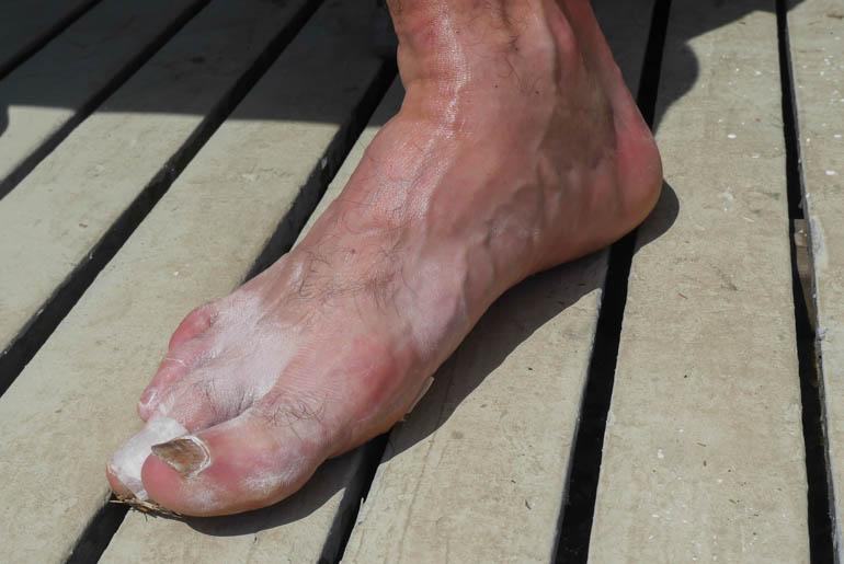 foot-1210819