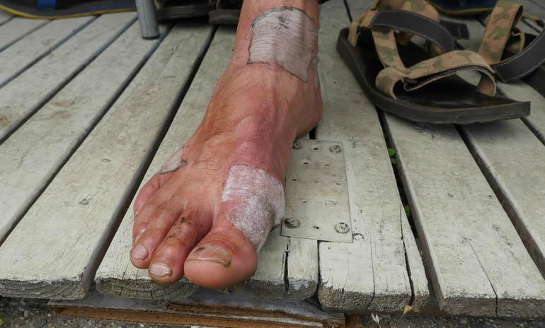 misha foot-1230915